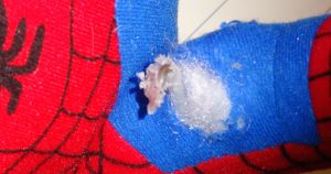 SpiderMan clearly required some microsurgery to his arm